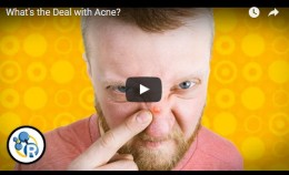 What's the Deal withAcne?