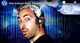 Non-Invasive Brain Surgery
